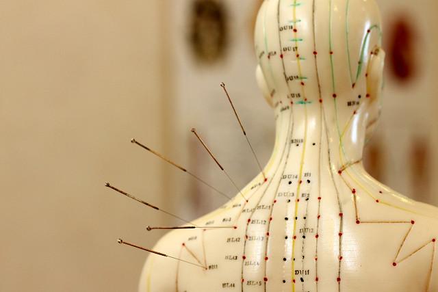 鍼灸師(はり師、きゅう師)は厚生労働省から認めた国家資格