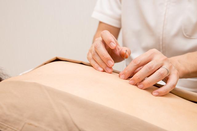 背中の筋緊張を鍼灸で取り除いていきます