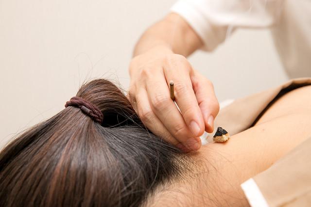 鍼灸施術による血行促進で症状が改善